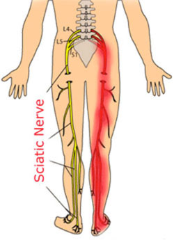 What Is Sciatica Jonathan Aarons Md Pain Management